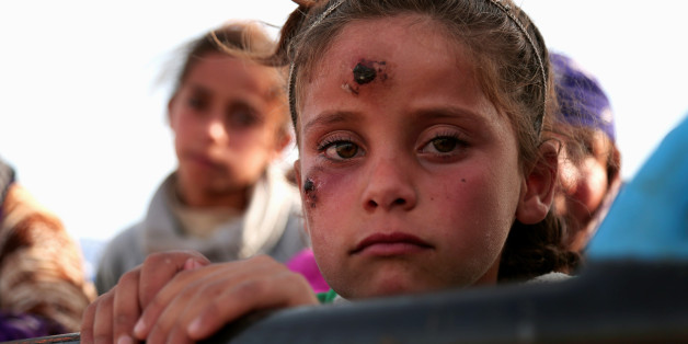 A girl, who according to her parents is showing symptoms of Leishmaniasis, returns with others to their town of Hisha, after the Syrian Democratic Forces (SDF) took control of the area from Islamic State militants, in the northern Raqqa countryside, Syria November 14, 2016. REUTERS/Rodi Said