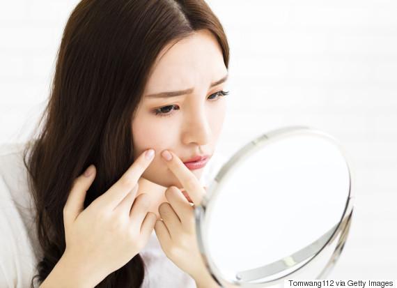 asian acne