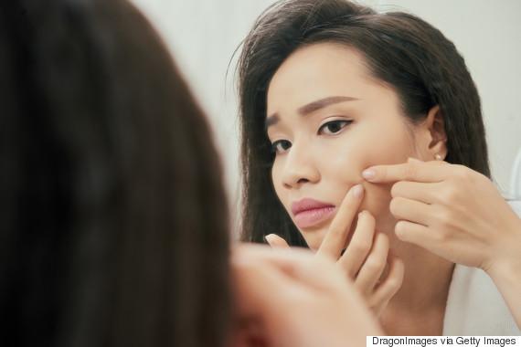 acne asian