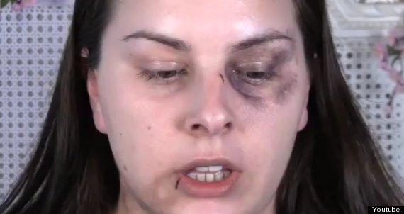 make up bruising