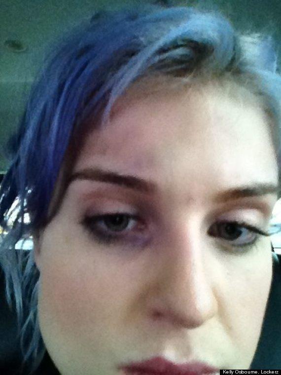 kelly osbourne black eye