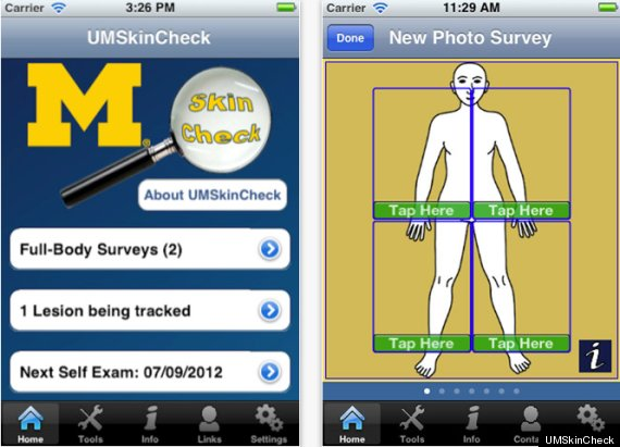 skin cancer phone app