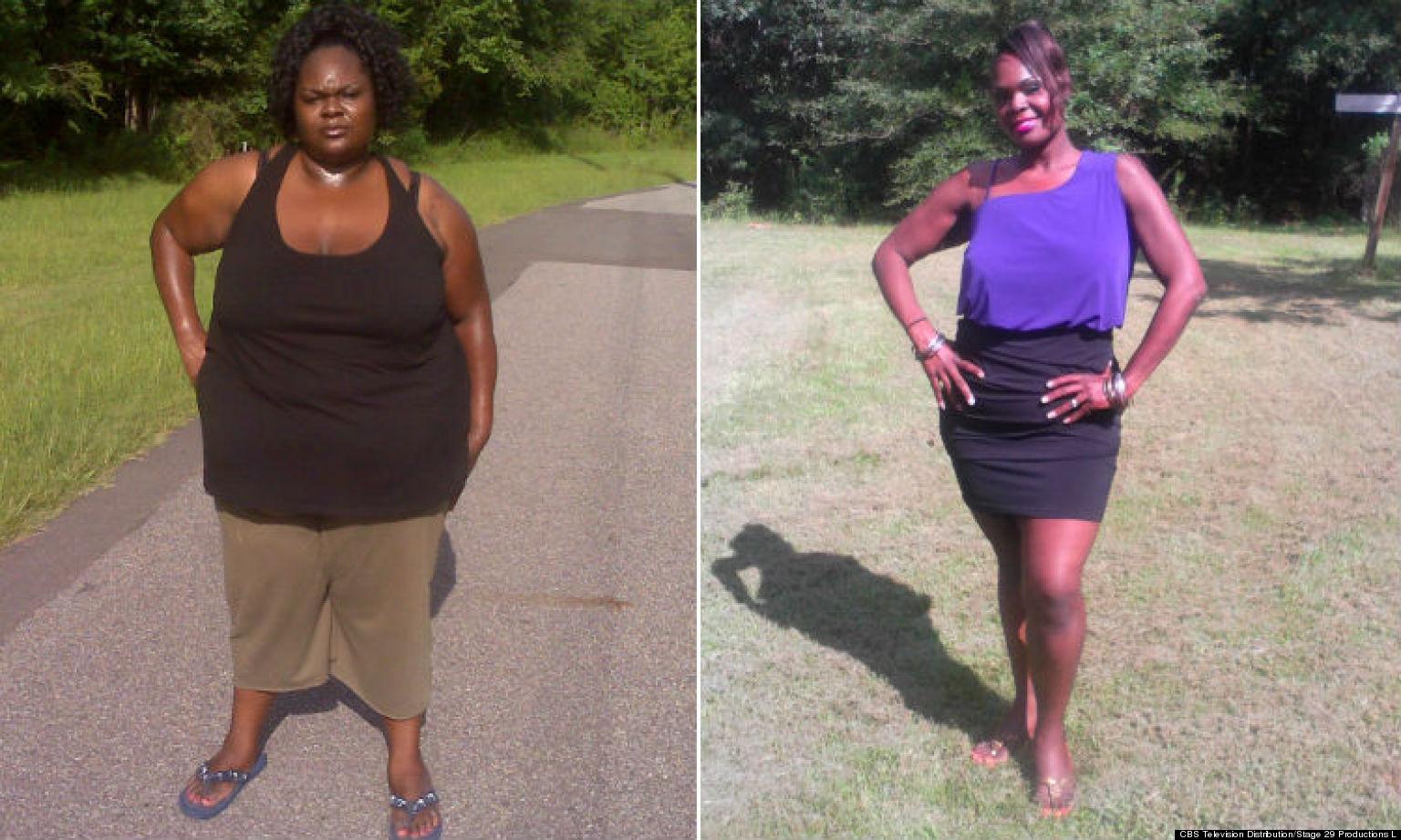Td jakes weight loss surgery