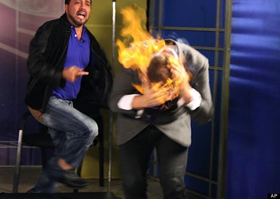 aptopix_dominican_republic_us_magician_burned
