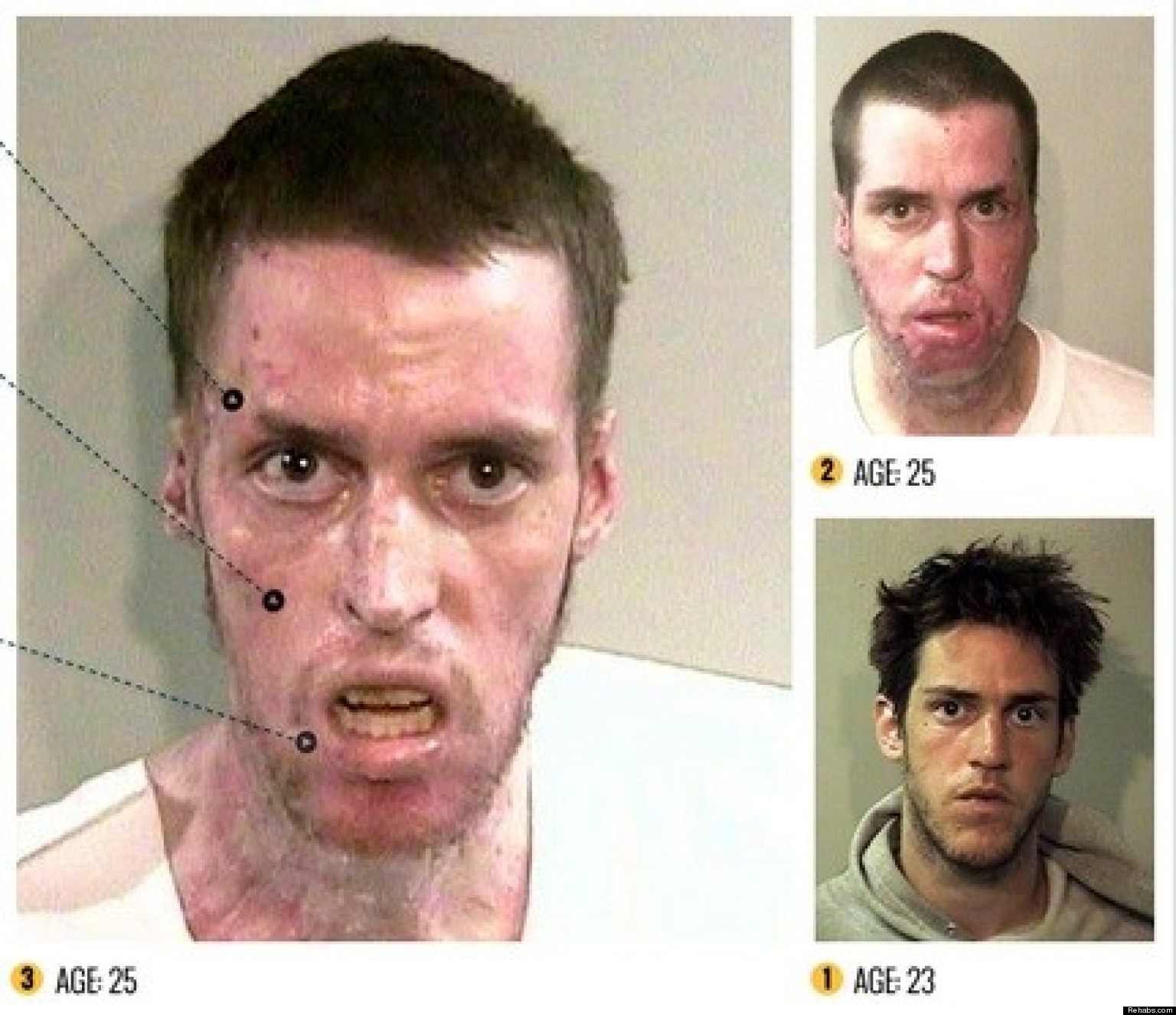 Methamphetamine  >> Horrors Of Methamphetamines By Rehabs Com Shows Faces Ravaged By