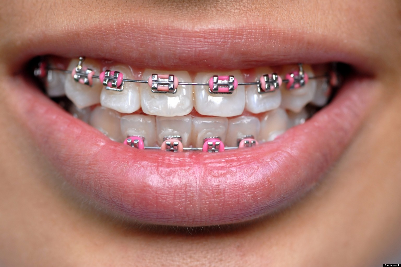 Braces Quotes Asian Teens Wearing Fake Braces As Status Symbol Report  Huffpost