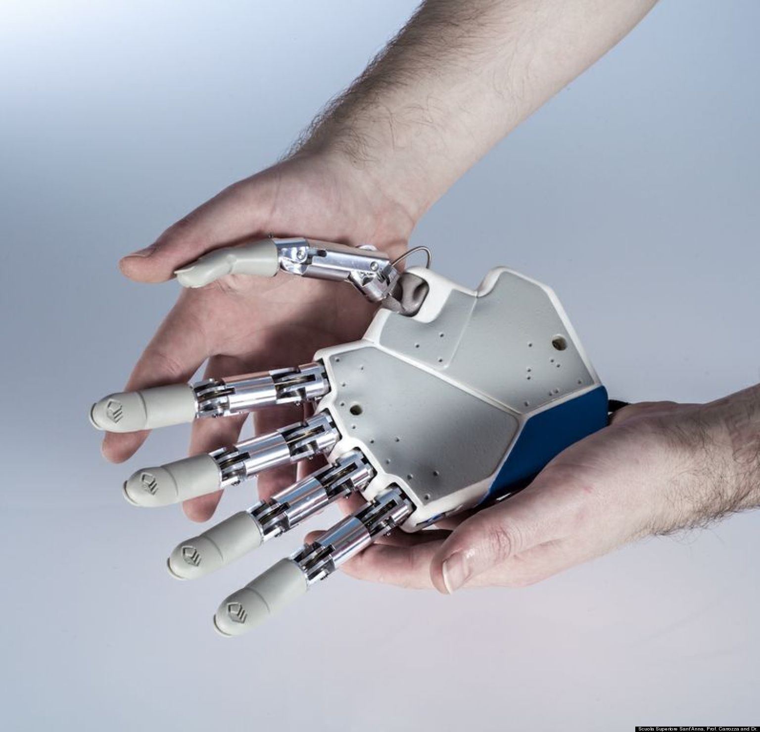 New Bionic Hand Prosthesis Called First To Give Amputees